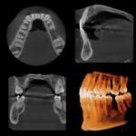 cranex 3D image6