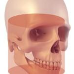 cranex 3D image7